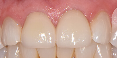crowns correcting cracks