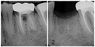 root canal with decay before