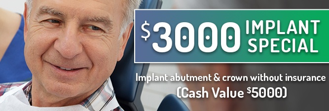 implant special $4500 value