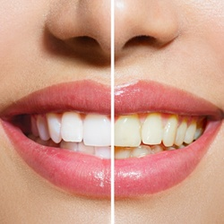 A smile before and after Zoom teeth whitening