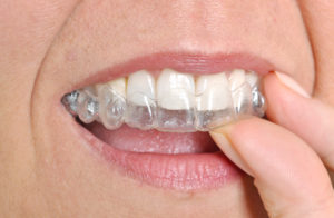 Learn About Invisalign With A Dentist In Northwest Oklahoma City